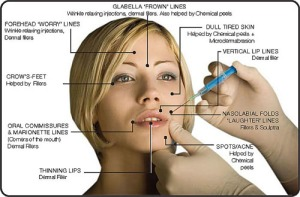 Botox Treatment or fine lines and wrinkles in Delhi
