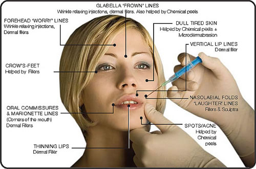 Delhi_Botox Treatment or fine lines and wrinkles in Delhi