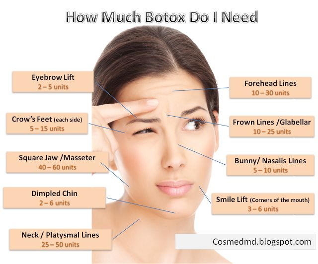 Botox injections price in Delhi « DERMAWORLD SKIN CLINIC