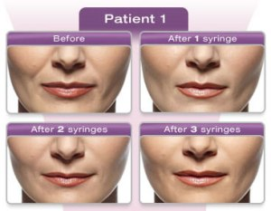 Filler treatment in delhi- Juvederm Ultra Plus XC