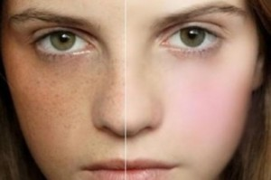 Laser treatment for freckles in delhi