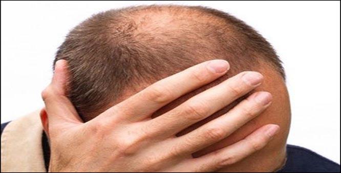hairloss_baldness