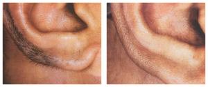 Laser hair removal  men face- Best price in Delhi.