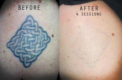 Tattoo a big no in defence and aviation dermaworld skin for Tattoo removal clinic