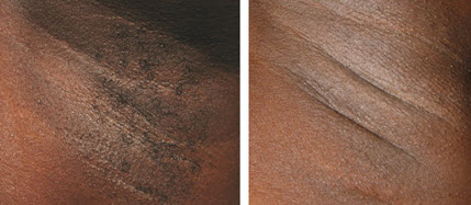 Laser Hair Removal Armpit Underarm Dermaworld Skin Clinic