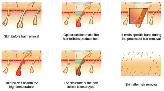 How Much Does Laser Hair Removal Cost Dermaworld Skin