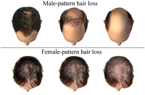 Platlet rich plasma treatment in delhi