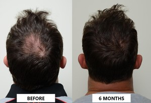 Platlet rich plasma results before and after