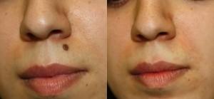Laser mole removal cost in Delhi