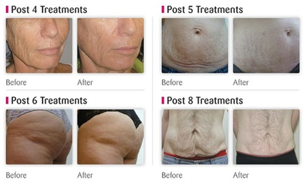 Viora-Skin-Tightening1