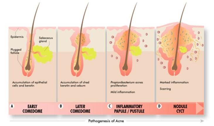Acne_treatment _delhi