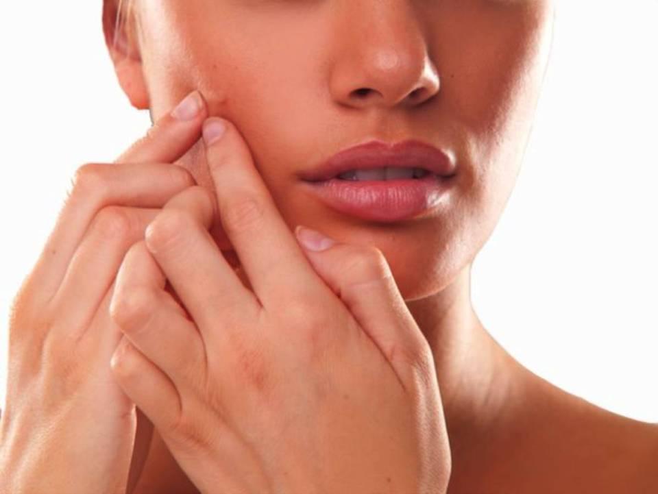 Acne_treatment_delhi