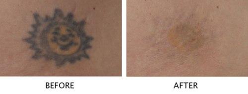 Laser-Tattoo-Removal-Delhi