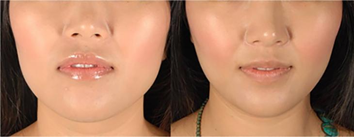 Botox_Delhi_masseter
