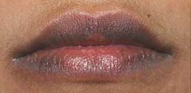 Dark Lips Treatment in Delhi by Best Q switched laser in Delhi
