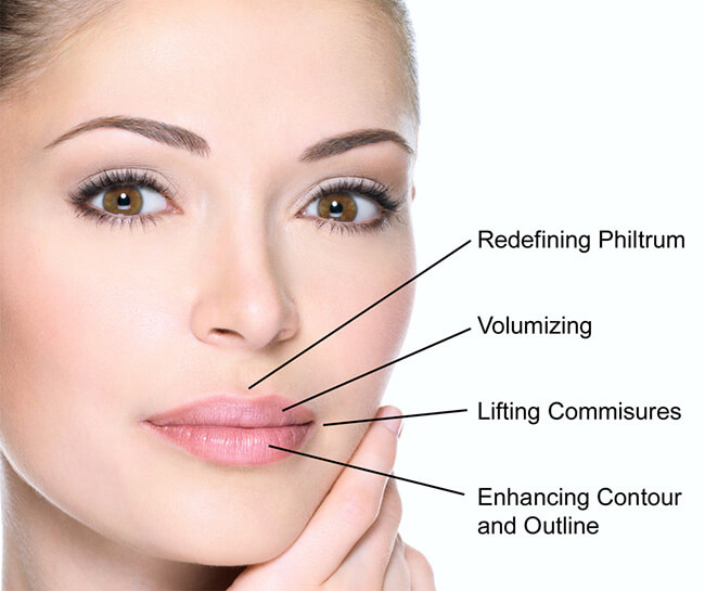 Lip Filler Cost In Delhi India 171 Dermaworld Skin Clinic