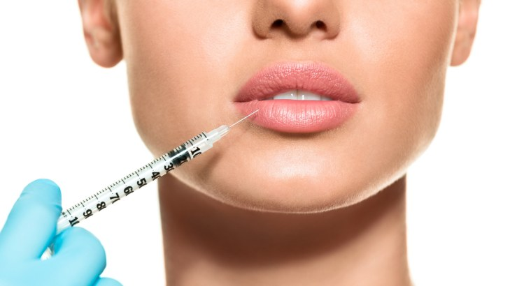Dermal Fillers for lip augmentation