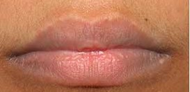 Best treatment for Dark Lips in Delhi, India