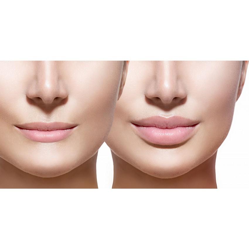 Lip Filler Cost in Delhi, India « DERMAWORLD SKIN CLINIC